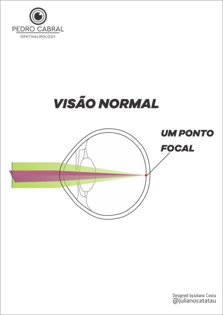 Visão Normal - Sem Miopia