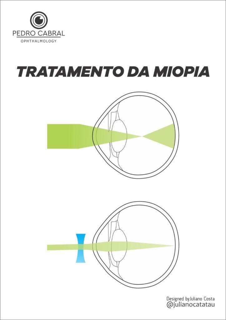 Tratamento da Miopia