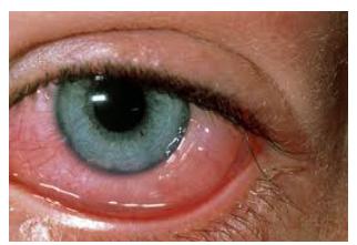 Alergias Oculares