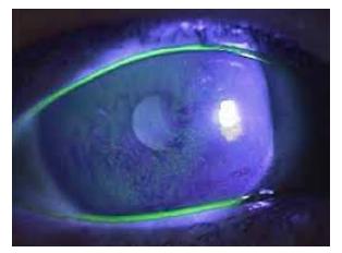 Para Diagnóstico - Uso de Corantes Oculares