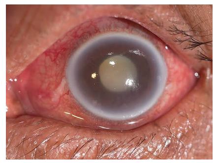 Glaucoma agudo (quadro grave)