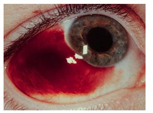 Hemorragia subconjuntival (apesar de assustador é um quadro sem maior gravidade)