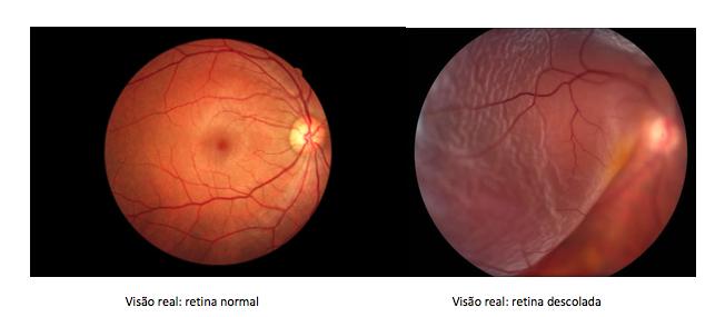 Diferenças entre retina normal e deslocada