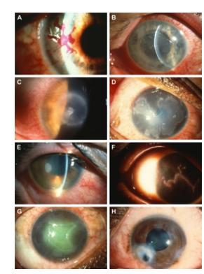 Algumas manifestações oculares do herpes