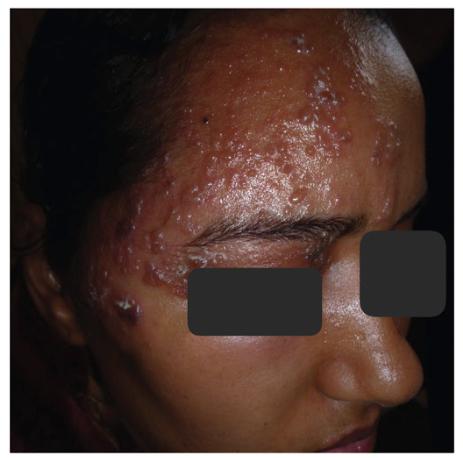Lesões Herpes zoster