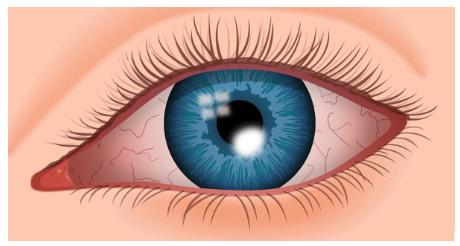Úlcera-de-Córnea