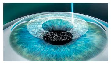 Correção visual a laser