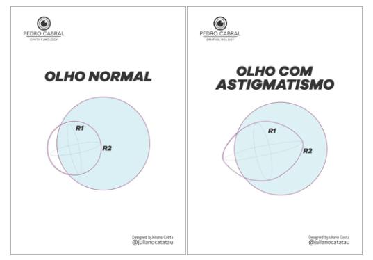 Olho Normal x Olho com Astigmatismo