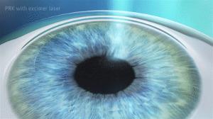 Cirurgia a laser com PRK