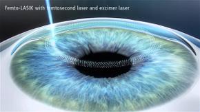 Cirurgia de LASIK com laser de Femto Segundo